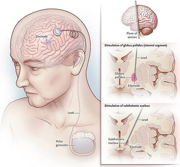 Deep Brain Stimulation In India Dbs Treatment In India