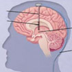Deep Brain Stimulation In India